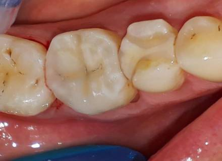 Restauration des dents  par CFAO